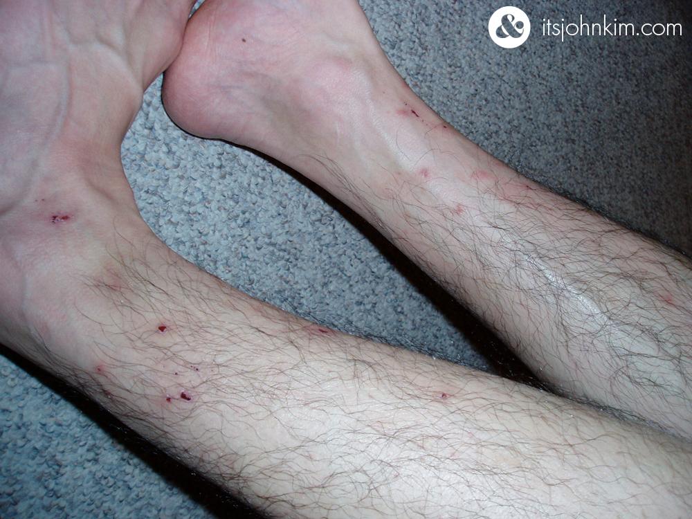 itsjohnkim.com---legs-2
